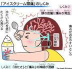 アイスクリーム頭痛の画像